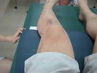 膝の鍼.jpg